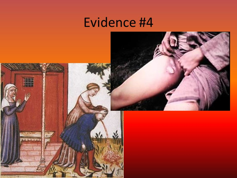 Evidence #4