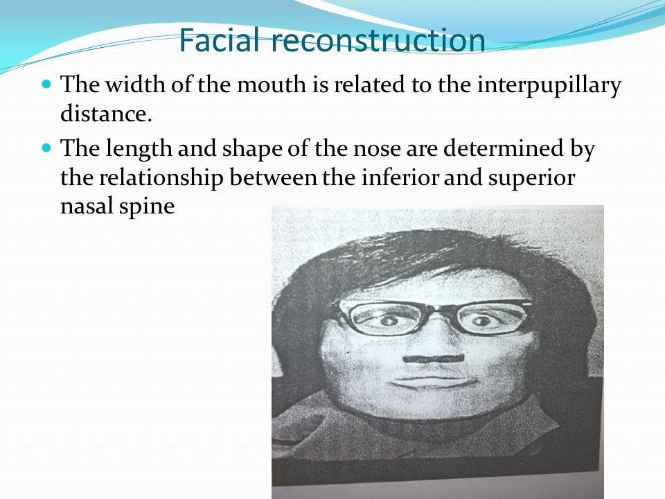 Facial reconstruction The width of the mouth is related to the interpupillary distance.