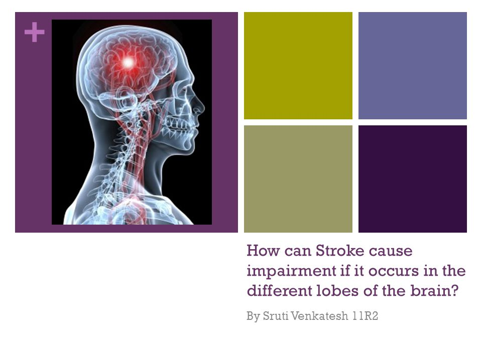 + How can Stroke cause impairment if it occurs in the different lobes of the brain.