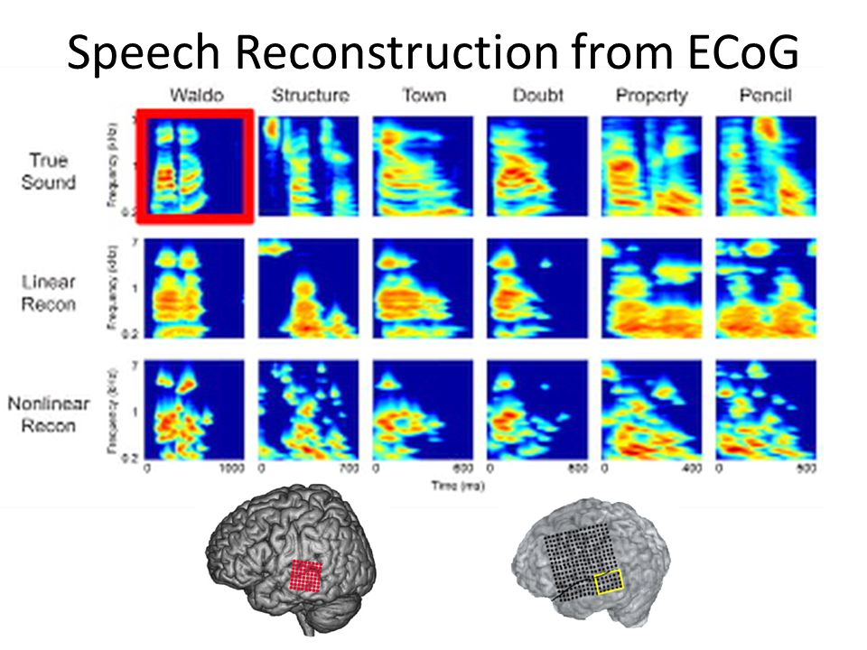 Speech Reconstruction from ECoG