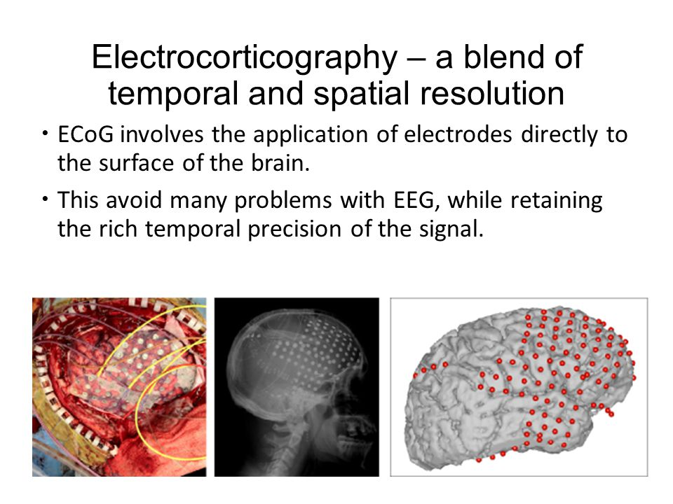 Electrocorticography – a blend of temporal and spatial resolution  ECoG involves the application of electrodes directly to the surface of the brain.