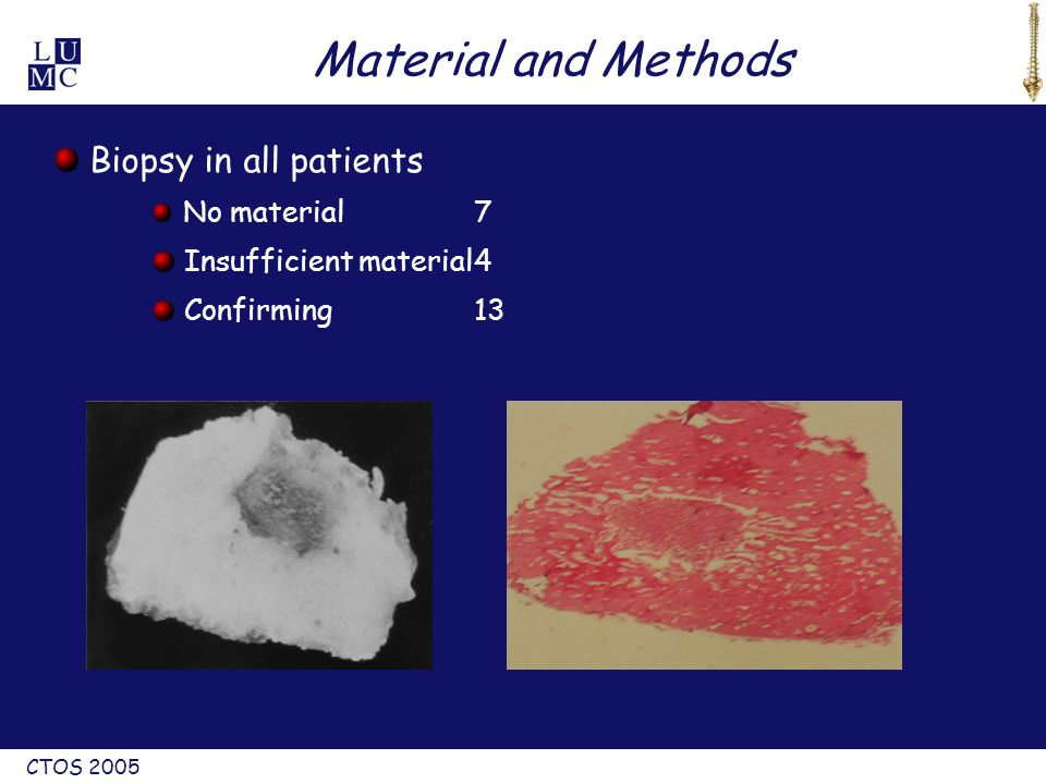 CTOS 2005 Biopsy in all patients No material7 Insufficient material4 Confirming13 Material and Methods