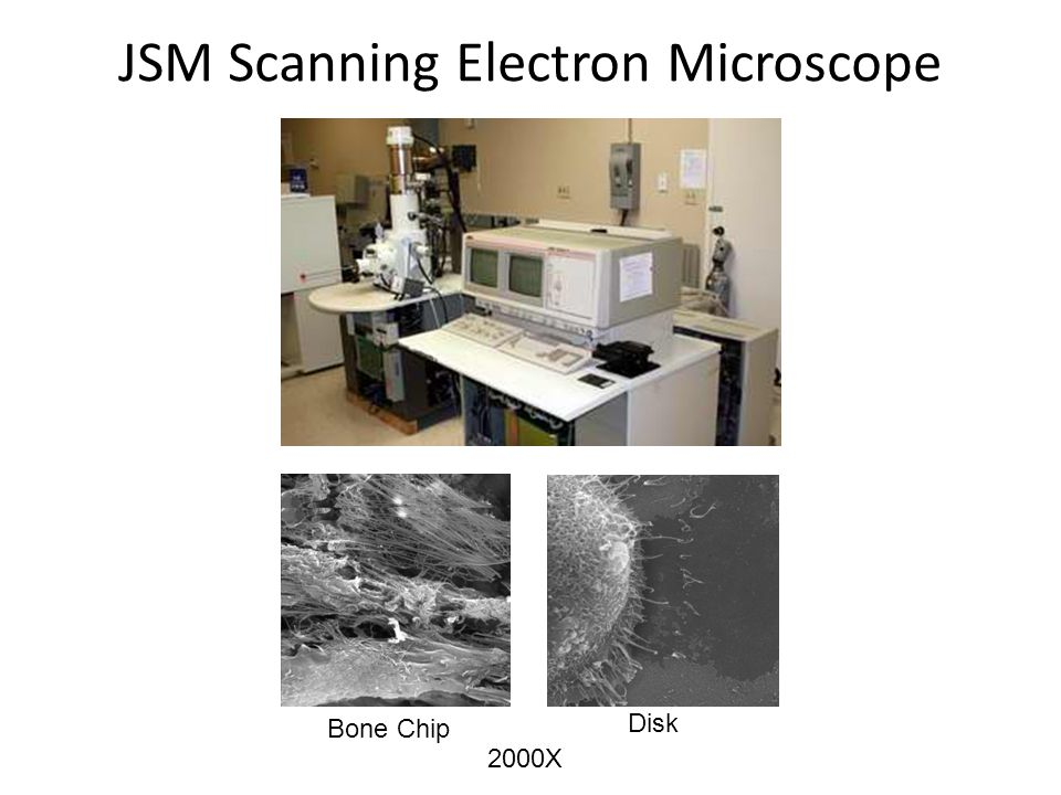 JSM Scanning Electron Microscope Bone Chip Disk 2000X