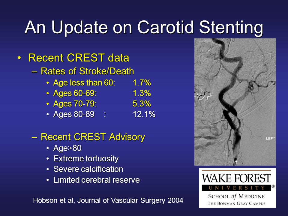 Hobson et al, Journal of Vascular Surgery 2004 An Update on Carotid Stenting Recent CREST dataRecent CREST data –Rates of Stroke/Death Age less than 60:1.7%Age less than 60:1.7% Ages 60-69:1.3%Ages 60-69:1.3% Ages 70-79:5.3%Ages 70-79:5.3% Ages 80-89:12.1%Ages 80-89:12.1% –Recent CREST Advisory Age>80Age>80 Extreme tortuosityExtreme tortuosity Severe calcificationSevere calcification Limited cerebral reserveLimited cerebral reserve