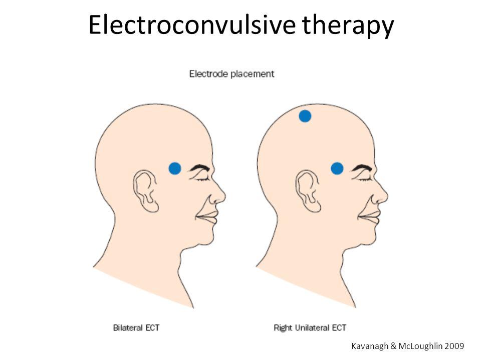 Electroconvulsive therapy Kavanagh & McLoughlin 2009