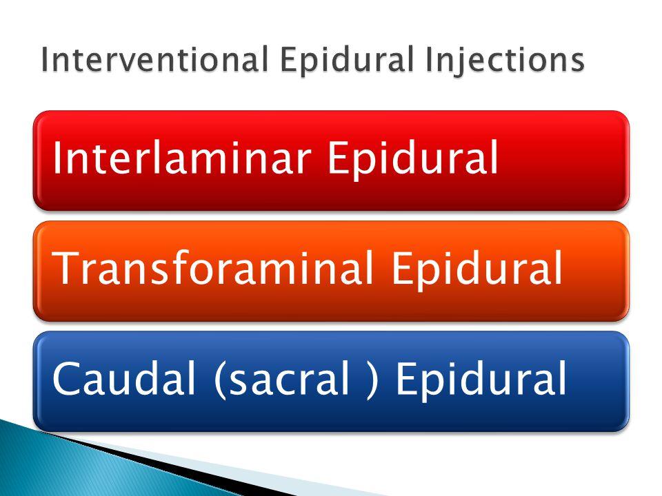 Interlaminar EpiduralTransforaminal EpiduralCaudal (sacral ) Epidural