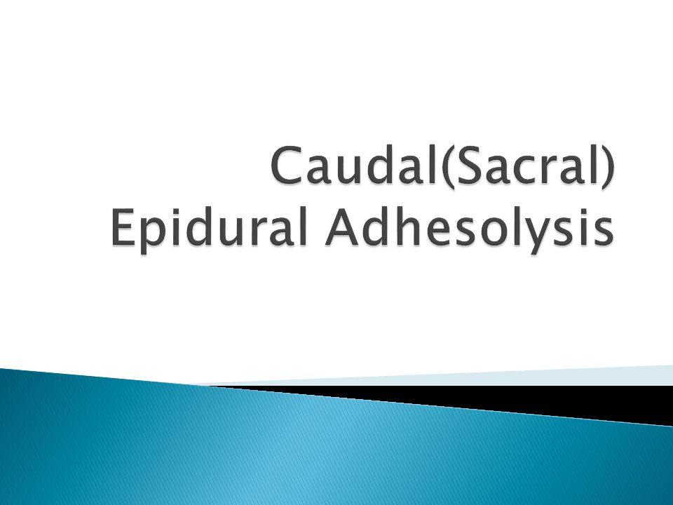  previous laminectomy  Post-Spine fixation  Dural Adhesion & fibrosis (LOR)  Epidural in high BMI Normal epidurogram
