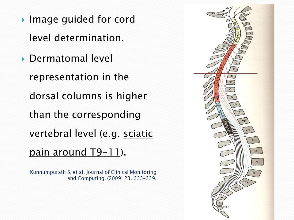  Image guided for cord level determination.  Dermatomal level representation in the dorsal columns is higher than the corresponding vertebral level