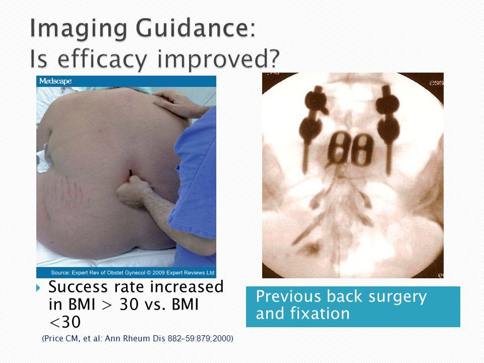 Previous back surgery and fixation  Success rate increased in BMI > 30 vs. BMI <30 (Price CM, et al: Ann Rheum Dis 2000;59:879–882)