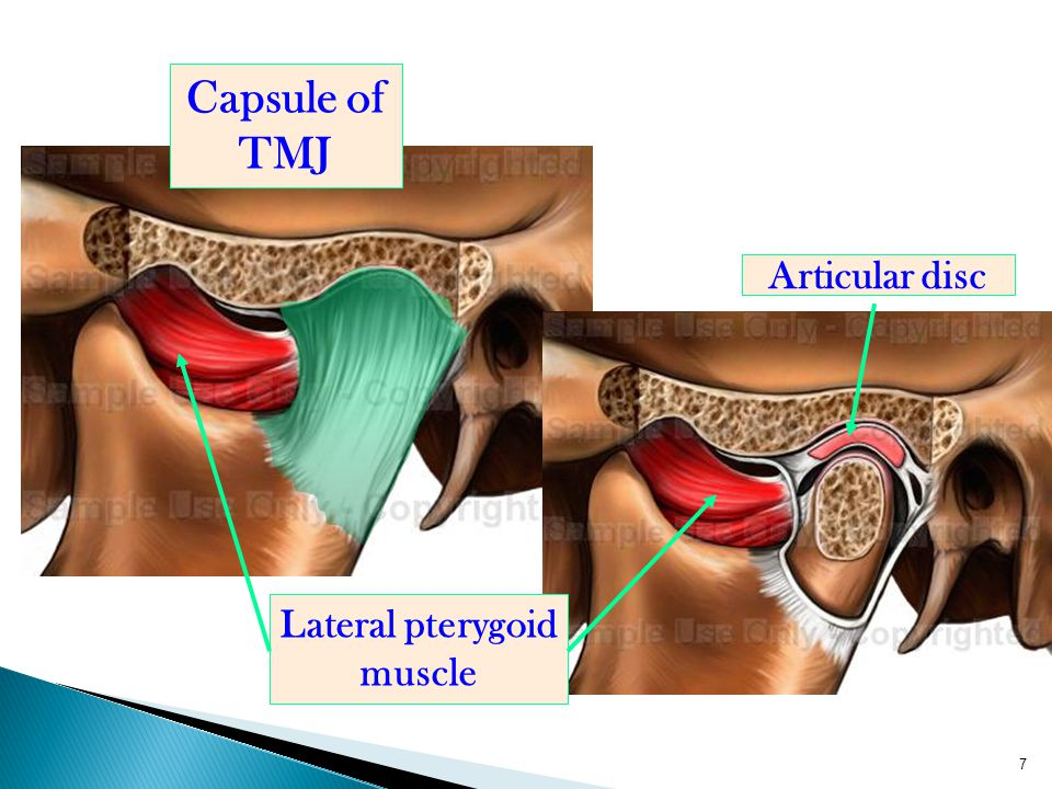 7 Capsule of TMJ Lateral pterygoid muscle Articular disc