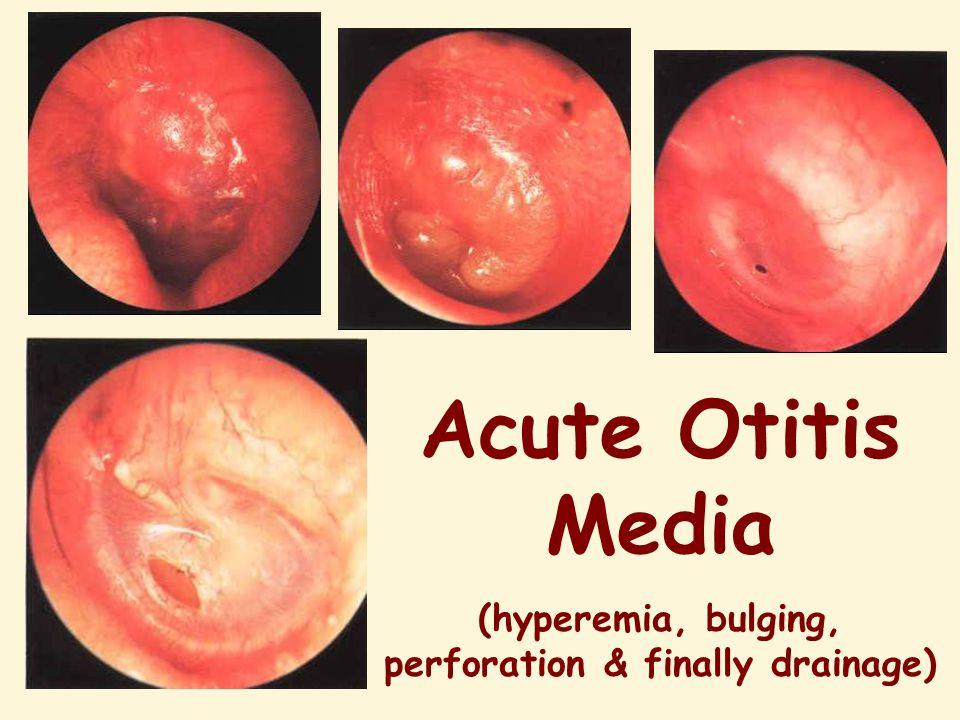 Acute Otitis Media (hyperemia, bulging, perforation & finally drainage)
