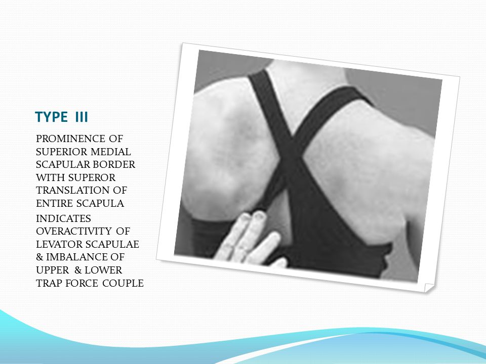TYPE III PROMINENCE OF SUPERIOR MEDIAL SCAPULAR BORDER WITH SUPEROR TRANSLATION OF ENTIRE SCAPULA INDICATES OVERACTIVITY OF LEVATOR SCAPULAE & IMBALANCE OF UPPER & LOWER TRAP FORCE COUPLE