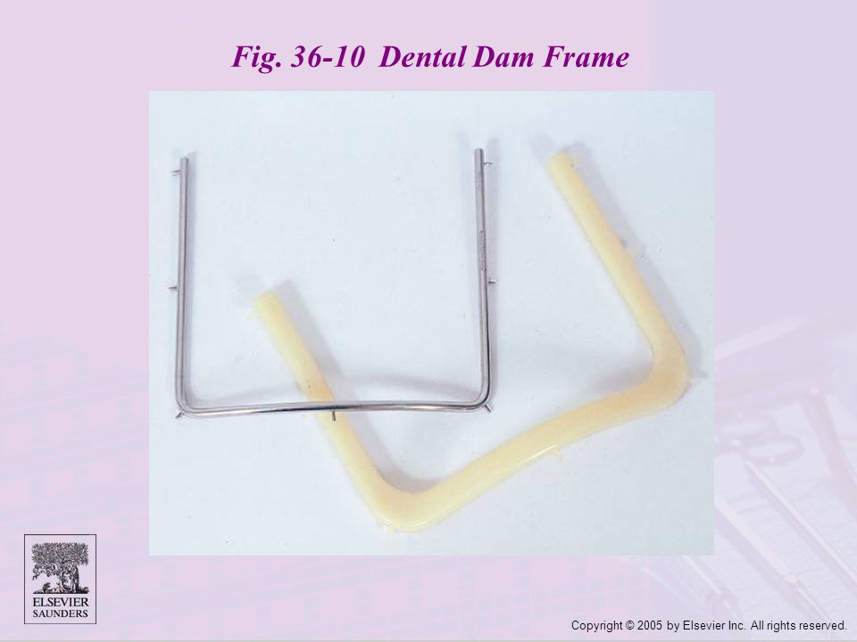 Copyright © 2005 by Elsevier Inc. All rights reserved. Fig. 36-10 Dental Dam Frame