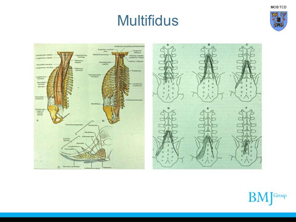 Multifidus MOB TCD