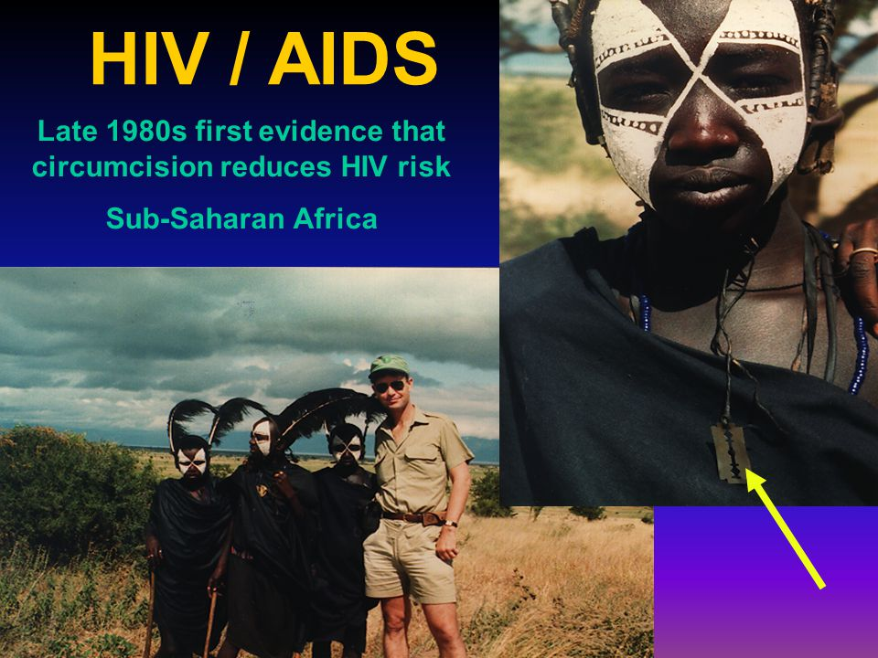 Late 1980s first evidence that circumcision reduces HIV risk Sub-Saharan Africa HIV / AIDS