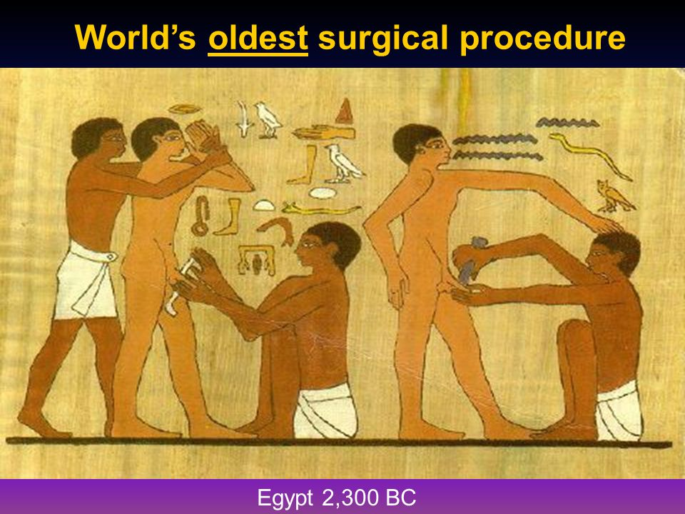 World's oldest surgical procedure xxxx Egypt 2,300 BC