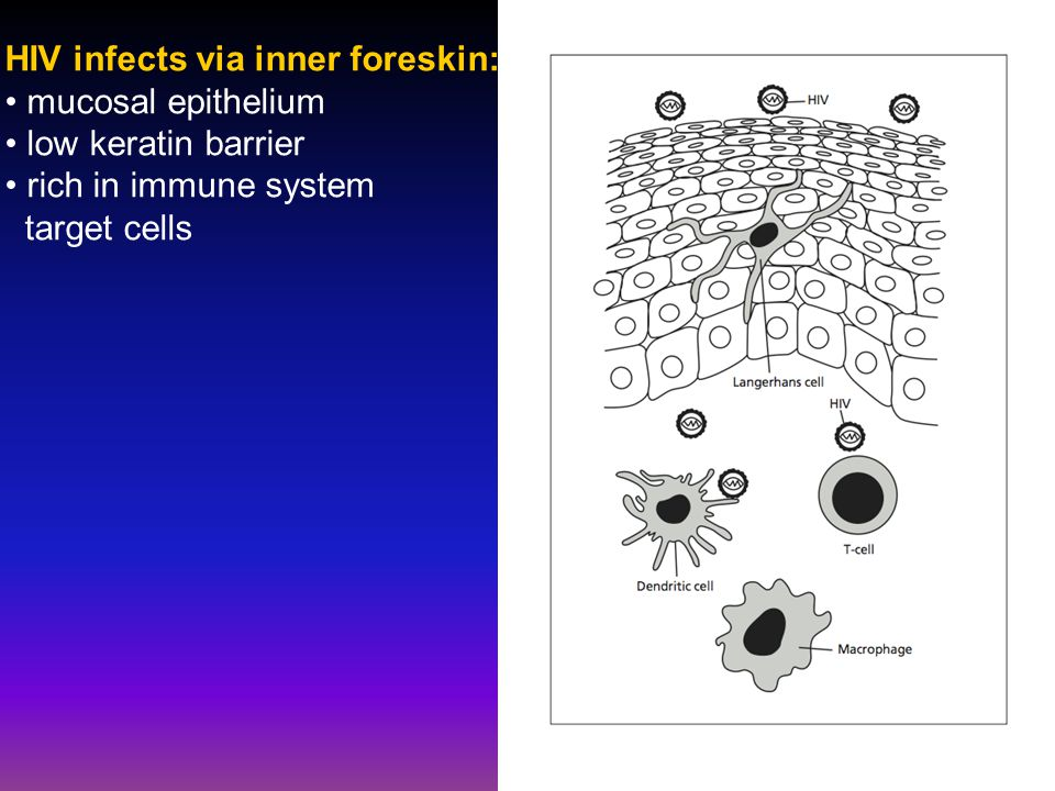 HIV infects via inner foreskin: mucosal epithelium low keratin barrier rich in immune system target cells