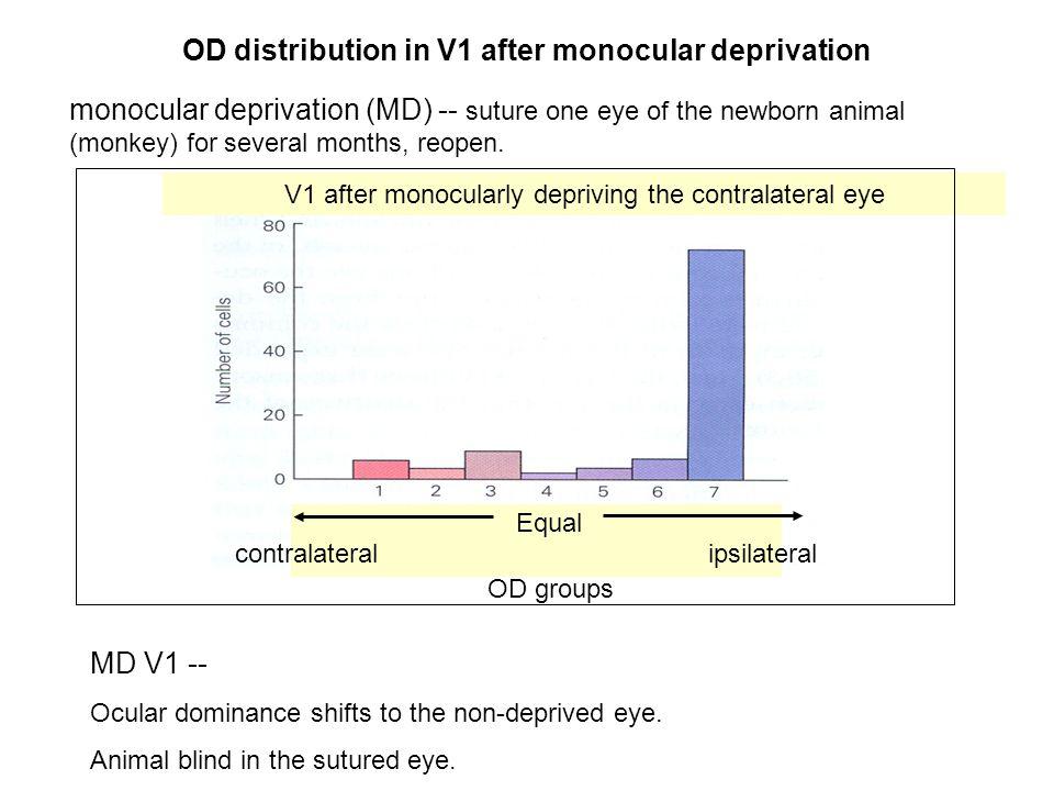 OD distribution in V1 after monocular deprivation MD V1 -- Ocular dominance shifts to the non-deprived eye.