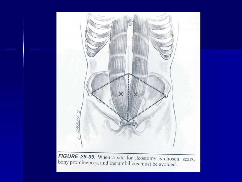 Complications If occurs late If occurs late –Circumcise the mucosa and excise redundant colon –Re-anastomose the distal mucosa to the proximal If occurs early If occurs early –Circumcise at mucocutaneous junction