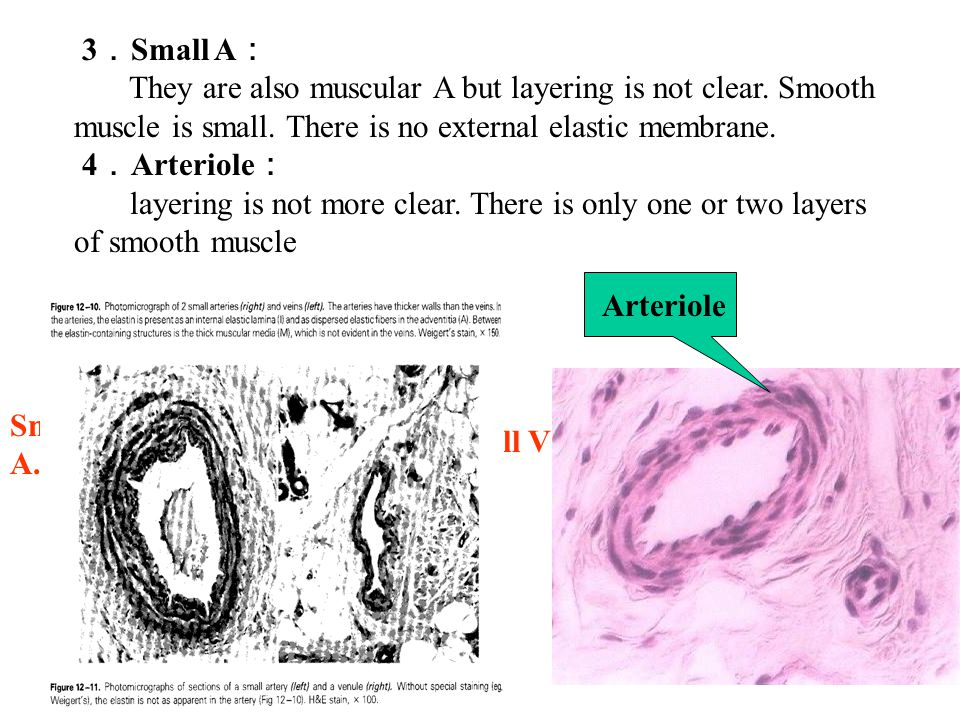 3 . Small A : They are also muscular A but layering is not clear.