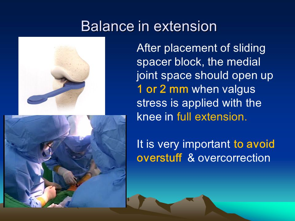Balance in extension Balance in extension After placement of sliding spacer block, the medial joint space should open up 1 or 2 mm when valgus stress is applied with the knee in full extension.