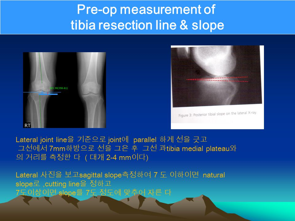 Pre-op measurement of tibia resection line & slope Lateral joint line 을 기준으로 joint 에 parallel 하게 선을 긋고 그선에서 7mm 하방으로 선을 그은 후 그선 과 tibia medial plateau