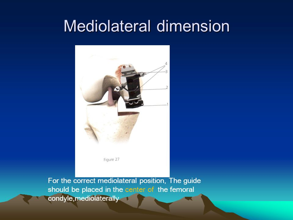 Mediolateral dimension For the correct mediolateral position, The guide should be placed in the center of the femoral condyle,mediolaterally
