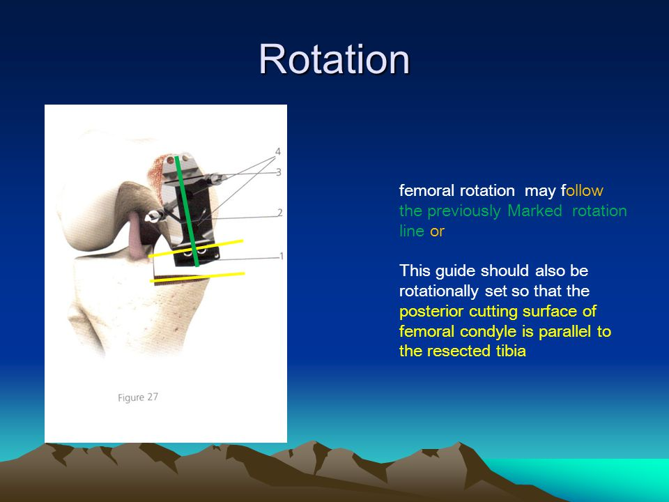 Rotation femoral rotation may follow the previously Marked rotation line or This guide should also be rotationally set so that the posterior cutting surface of femoral condyle is parallel to the resected tibia