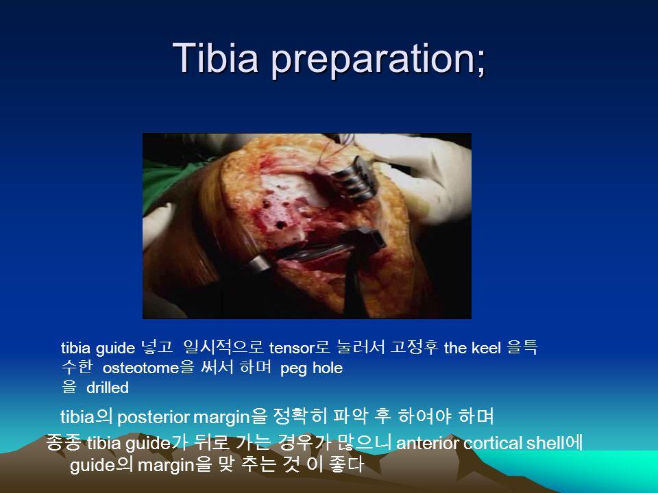 Tibia preparation; tibia guide 넣고 일시적으로 tensor 로 눌러서 고정후 the keel 을특 수한 osteotome 을 써서 하며 peg hole 을 drilled tibia 의 posterior margin 을 정확히 파악 후 하여야 하며 종종 tibia guide 가 뒤로 가는 경우가 많으니 anterior cortical shell 에 guide 의 margin 을 맞 추는 것 이 좋다