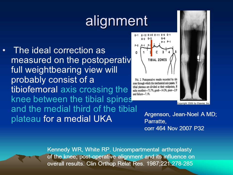 The ideal correction as measured on the postoperative full weightbearing view will probably consist of a tibiofemoral axis crossing the knee between the tibial spines and the medial third of the tibial plateau for a medial UKA alignment Kennedy WR, White RP.