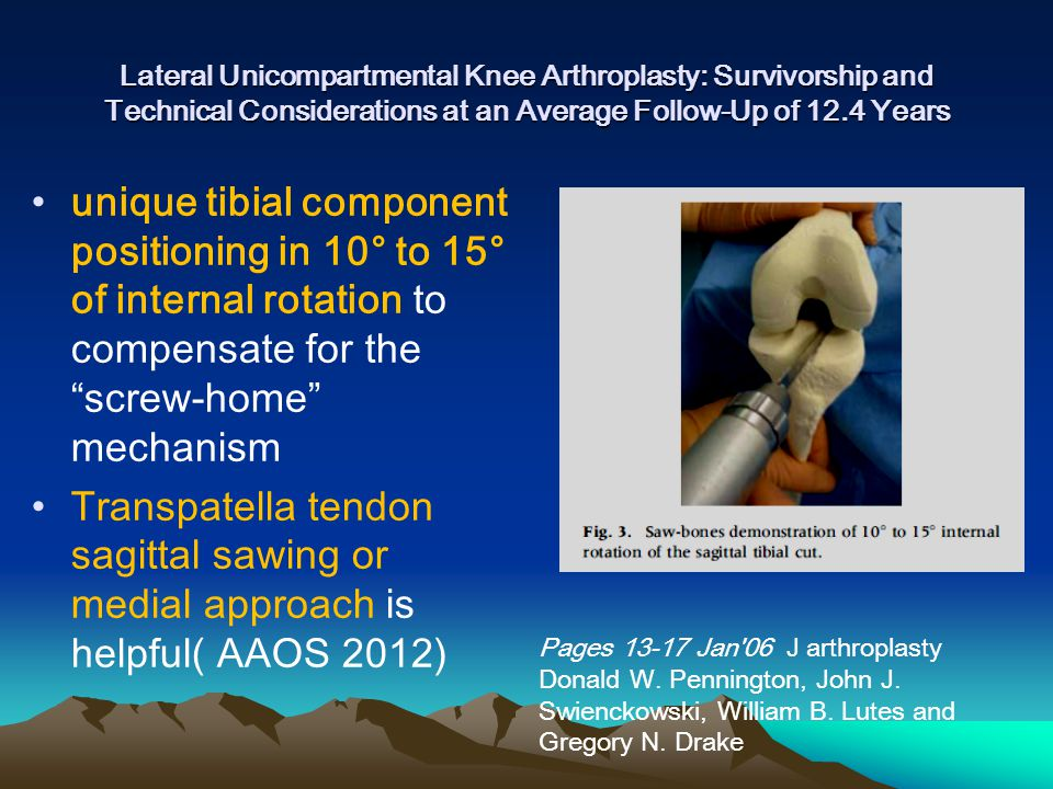 unique tibial component positioning in 10° to 15° of internal rotation to compensate for the screw-home mechanism Transpatella tendon sagittal sawing or medial approach is helpful( AAOS 2012) Lateral Unicompartmental Knee Arthroplasty: Survivorship and Technical Considerations at an Average Follow-Up of 12.4 Years Pages 13-17 Jan 06 J arthroplasty Donald W.