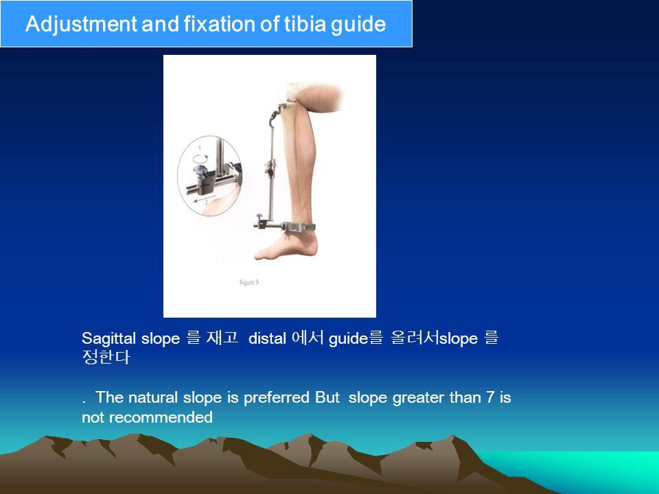 Sagittal slope 를 재고 distal 에서 guide 를 올려서 slope 를 정한다.
