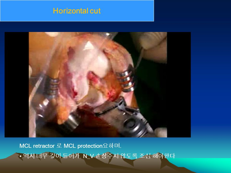 Horizontal cut MCL retractor 로 MCL protection 요하며. 역시 너무 깊이 들어가 N_V 손상주지 않도록 조심 해야한다