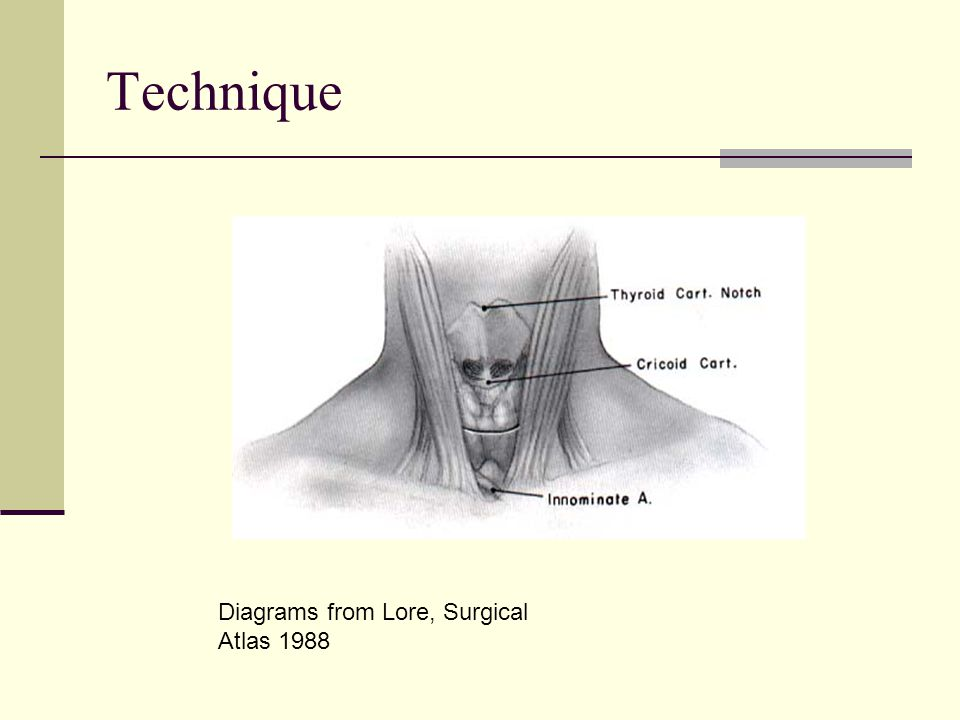 Technique Diagrams from Lore, Surgical Atlas 1988