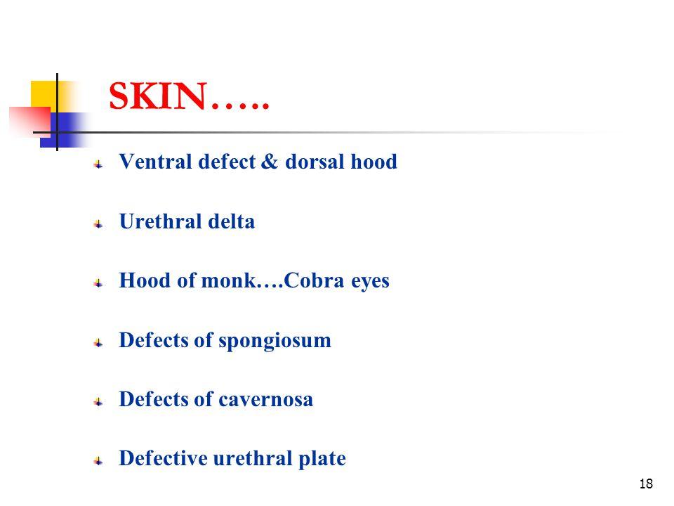 18 SKIN….. Ventral defect & dorsal hood Urethral delta Hood of monk….Cobra eyes Defects of spongiosum Defects of cavernosa Defective urethral plate