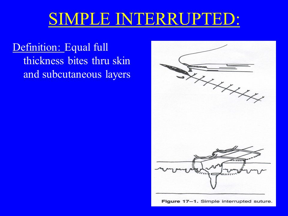 SIMPLE INTERRUPTED: Definition: Equal full thickness bites thru skin and subcutaneous layers
