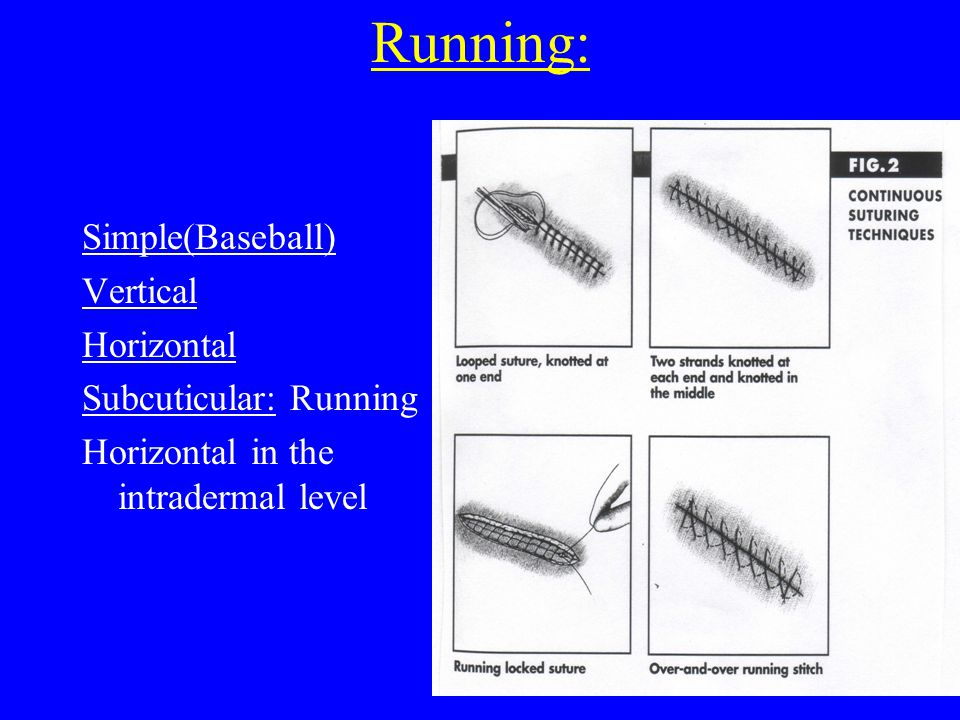 Running: Simple(Baseball) Vertical Horizontal Subcuticular: Running Horizontal in the intradermal level