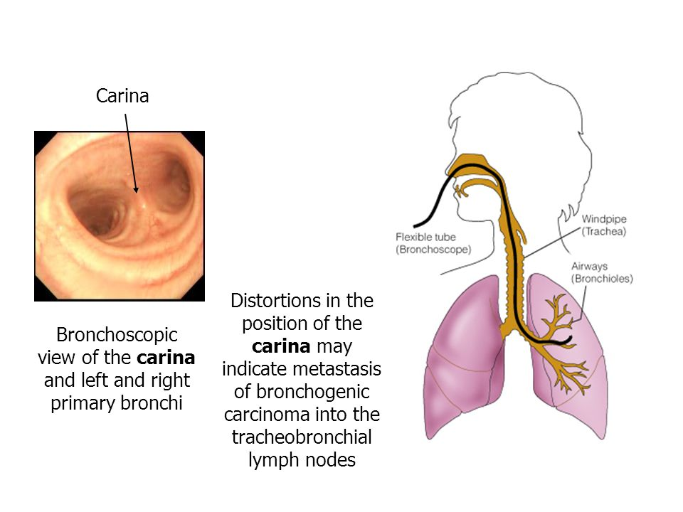 Bronchoscopic view of the carina and left and right primary bronchi Distortions in the position of the carina may indicate metastasis of bronchogenic carcinoma into the tracheobronchial lymph nodes Carina