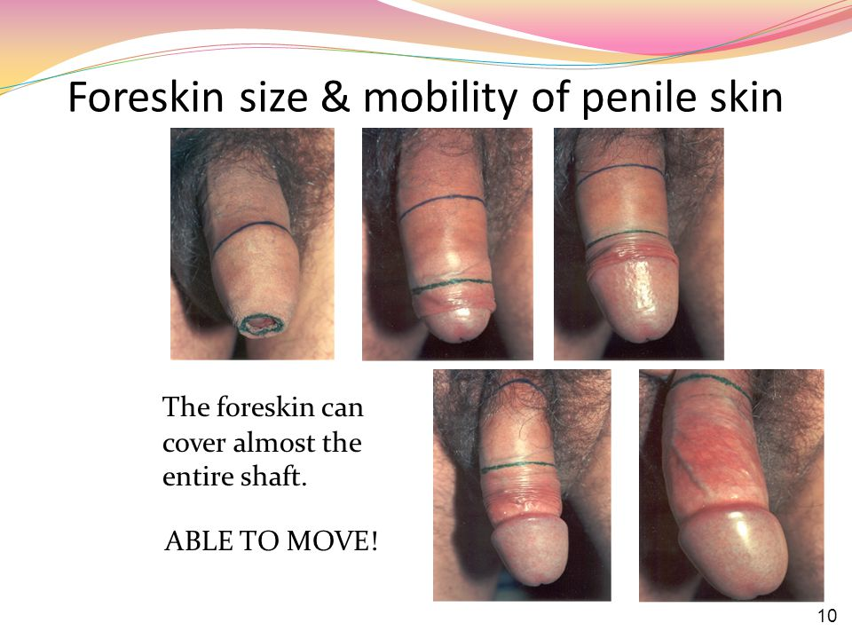 Foreskin size & mobility of penile skin The foreskin can cover almost the entire shaft.