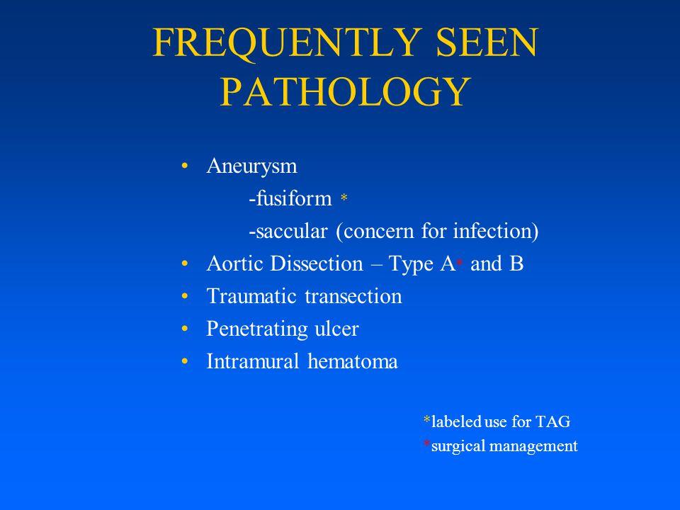 LATE FOLLOW UP Erosions – 0 Endoleaks/aneurysm – 0 Access site false aneurysm – 0 Paraplegia – 0 Secondary interventions – 0