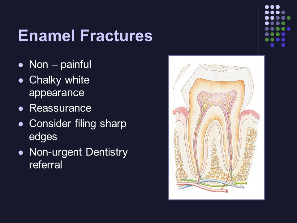 Enamel Fractures Non – painful Chalky white appearance Reassurance Consider filing sharp edges Non-urgent Dentistry referral