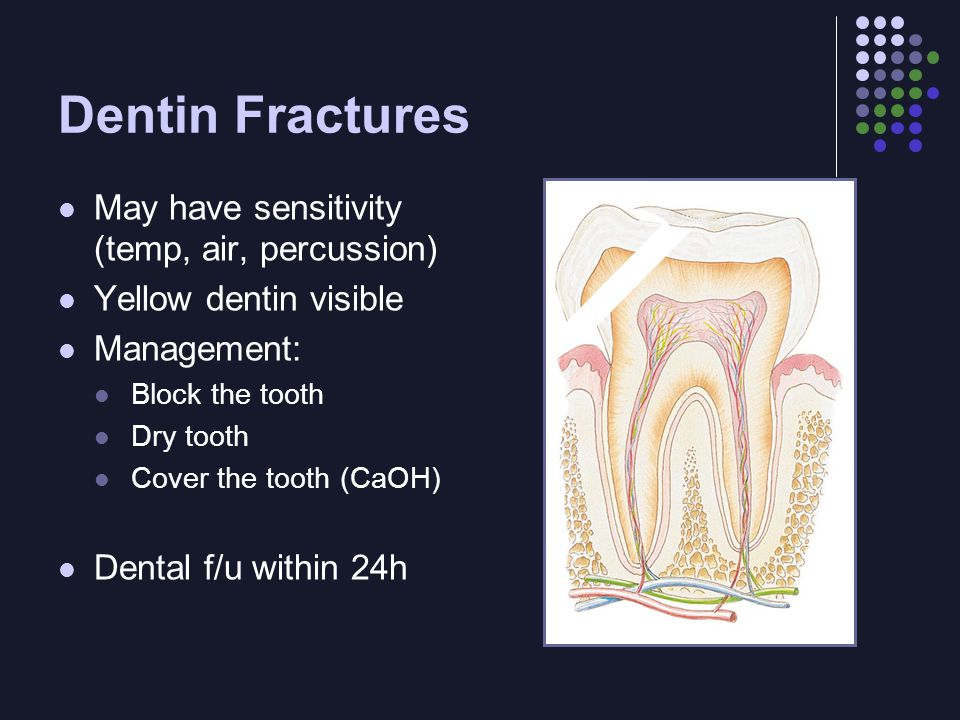 Dentin Fractures May have sensitivity (temp, air, percussion) Yellow dentin visible Management: Block the tooth Dry tooth Cover the tooth (CaOH) Dental f/u within 24h