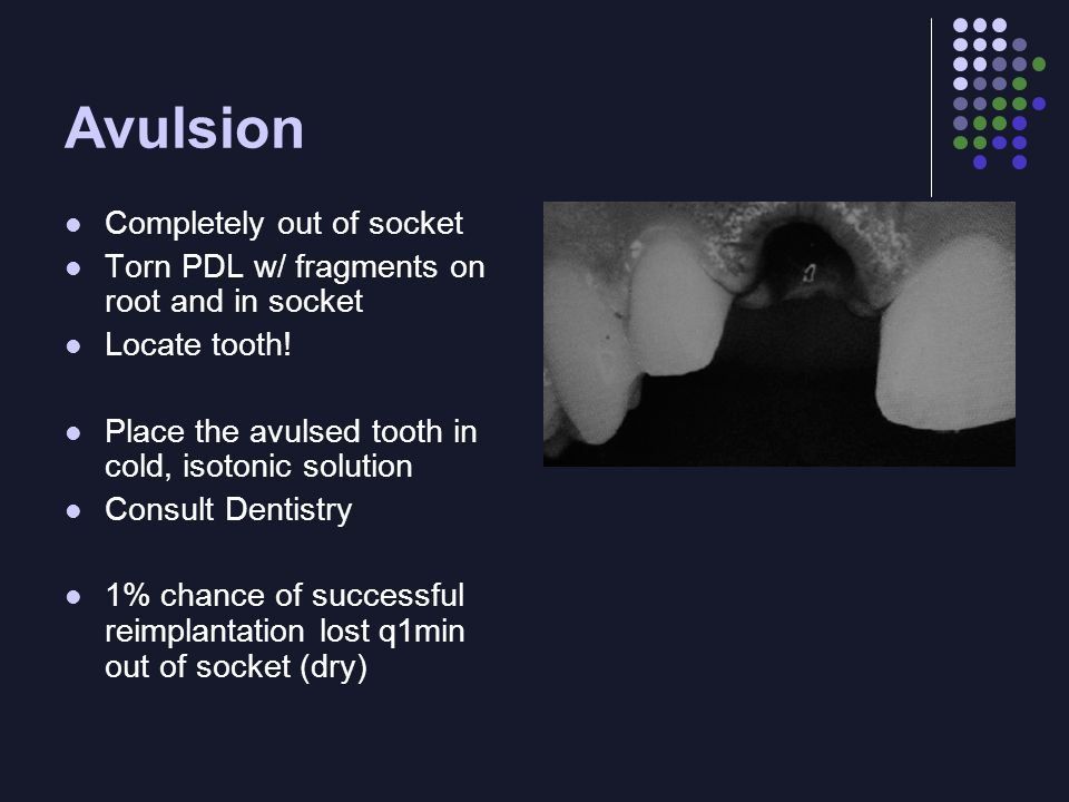 Avulsion Completely out of socket Torn PDL w/ fragments on root and in socket Locate tooth.
