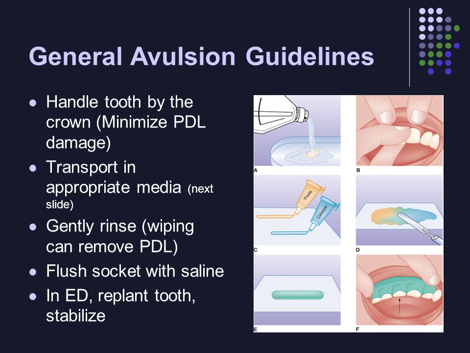 General Avulsion Guidelines Handle tooth by the crown (Minimize PDL damage) Transport in appropriate media (next slide) Gently rinse (wiping can remove PDL) Flush socket with saline In ED, replant tooth, stabilize
