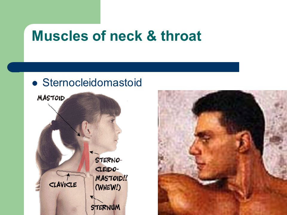 Muscles of neck & throat Sternocleidomastoid
