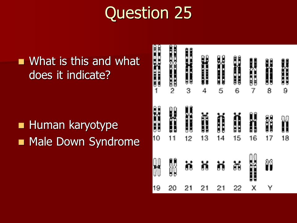 Question 25 What is this and what does it indicate? What is this and what does it indicate? Human karyotype Human karyotype Male Down Syndrome Male Do