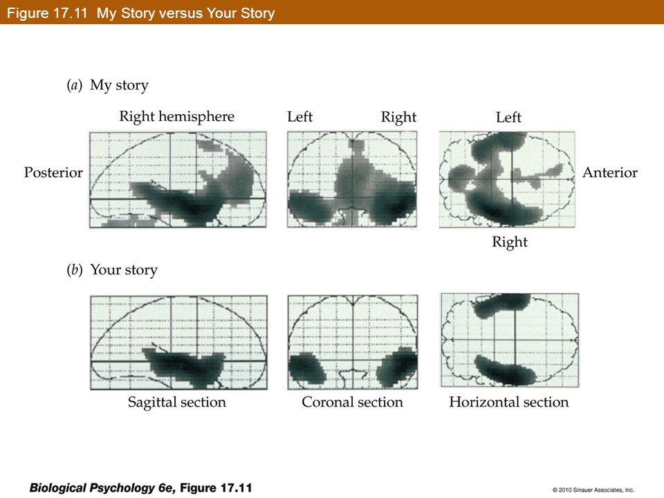 Figure 17.11 My Story versus Your Story