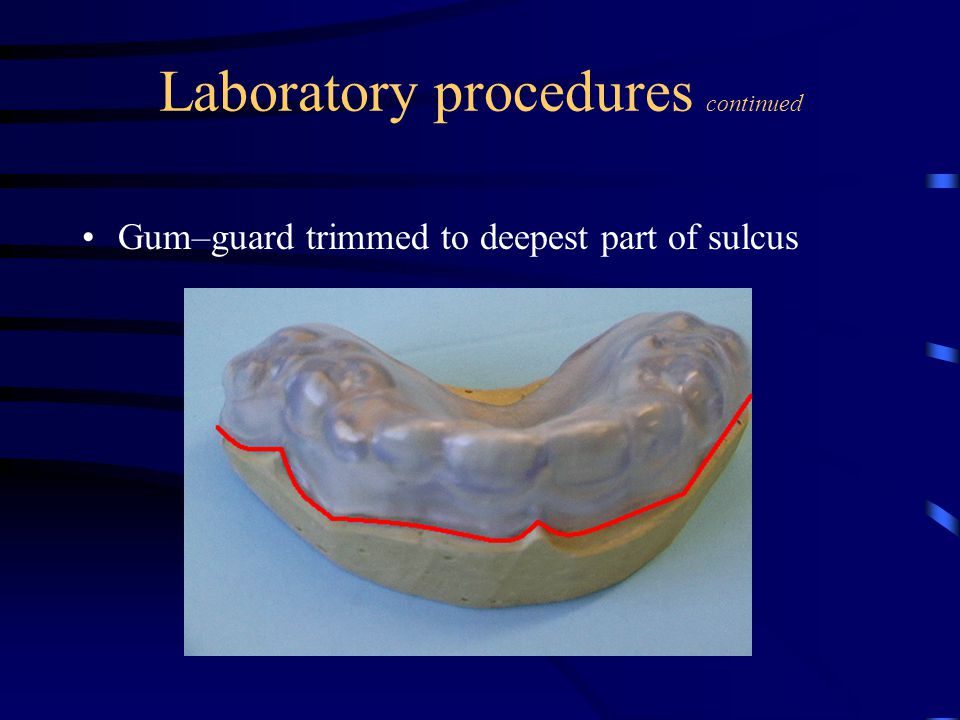 Laboratory procedures continued Gum–guard trimmed to deepest part of sulcus