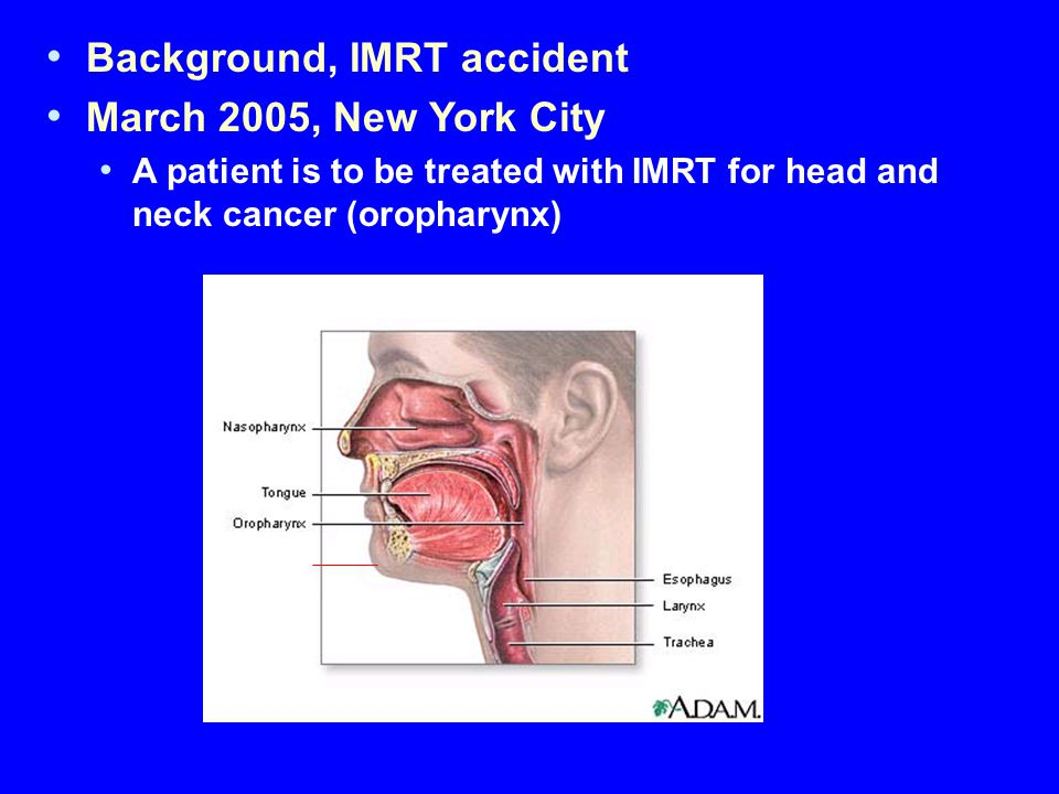 Background, IMRT accident March 2005, New York City A patient is to be treated with IMRT for head and neck cancer (oropharynx)