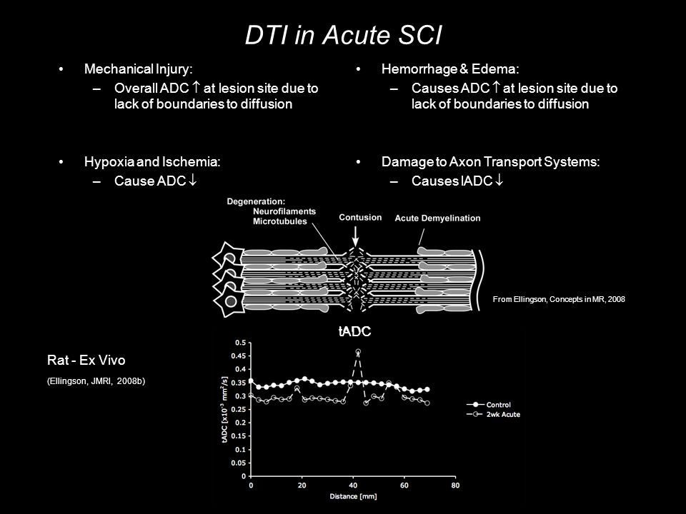 DTI in Acute SCI Mechanical Injury: –Overall ADC  at lesion site due to lack of boundaries to diffusion Hypoxia and Ischemia: –Cause ADC  Hemorrhage & Edema: –Causes ADC  at lesion site due to lack of boundaries to diffusion Damage to Axon Transport Systems: –Causes lADC  Rat - Ex Vivo (Ellingson, JMRI, 2008b) lADCtADC From Ellingson, Concepts in MR, 2008